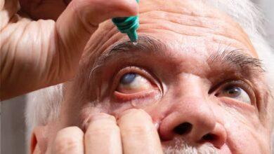 Photo of Cataract: Types, Symptoms and Treatments