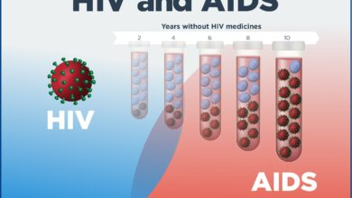 Photo of 5 Ways HIV Can Affect Nails