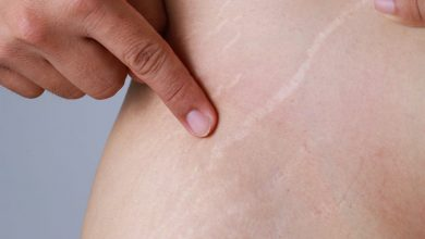 Photo of Fastest Way to Get Rid of Stretch Marks