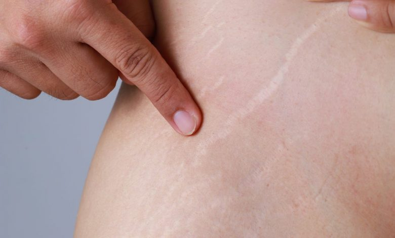 Fastest Way to Get Rid of Stretch Marks