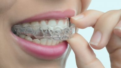 Photo of How much are clear correct braces?