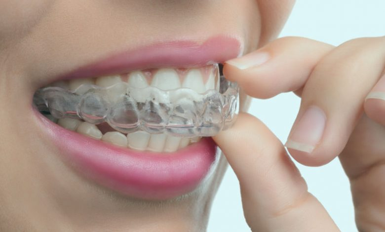How much are clear correct braces?