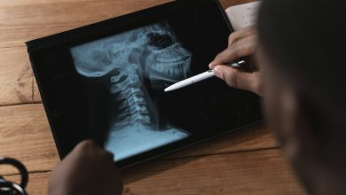 Photo of Importance of X-rays in medicine and surgery