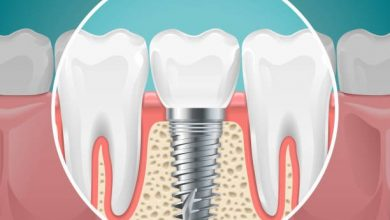 Photo of The Pros and Cons of Dental Implants