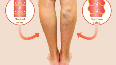 Photo of Laser for Varicose Veins Treatment in Melbourne