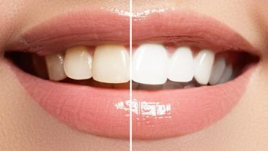 Photo of Does Teeth Whitening Gum Actually Work?