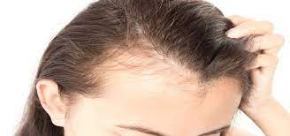 Photo of Possible Causes and Treatment of Hair Loss in Teenagers